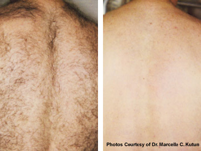 hair removal before and after